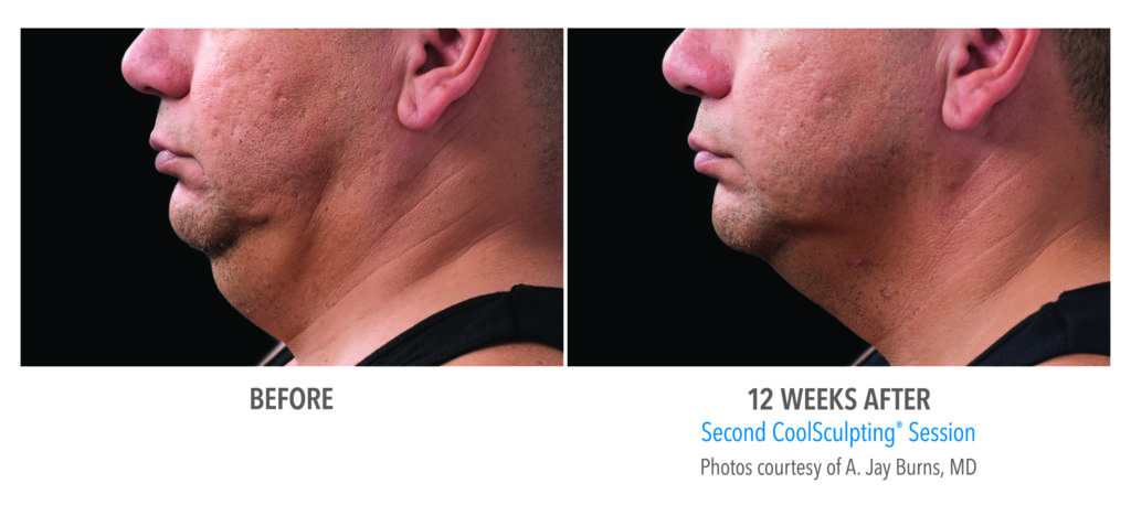 under the chin fat